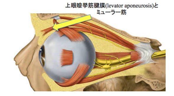 もともと、健康な人はまぶたの中の筋肉が収縮することで、目を開けることができます。しかし、眼瞼下垂の患者さんは、その収縮の力が瞼板というまぶたを支持する場所に伝わらないため、目が開きにくくなります。