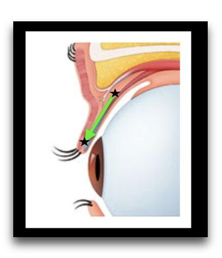 糸を結んで縛ると、2つの⭐️の部分が重なるように結び目が移動して、筋肉の短縮効果が出ます