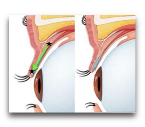 《効果》 組織の緩みによって、短縮効果は徐々に弱くなりますが、一定のところで変化が止まり、効果が安定します 手術時間は片目約10分で、両眼を同日に行うことも可能です
