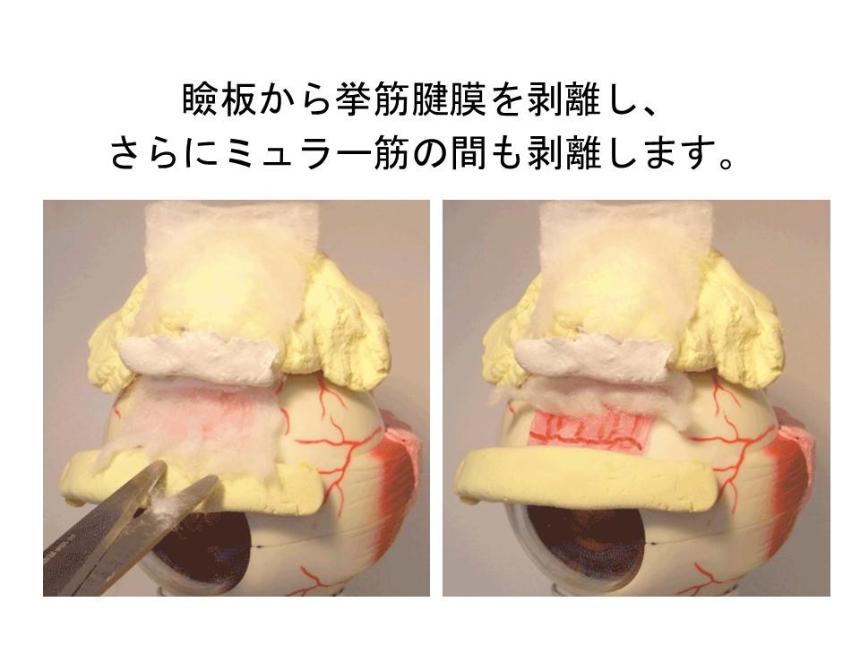 瞼板から挙筋腱膜を剥離し、 さらにミュラー筋の間も剥離します。