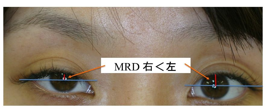 MRD Margin Reflex Distance 眼瞼下垂の診断 右の方がMRD短く、二重の幅が広い=眼瞼下垂