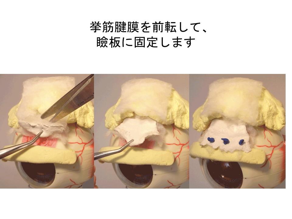 挙筋腱膜を前転して、瞼板に固定します