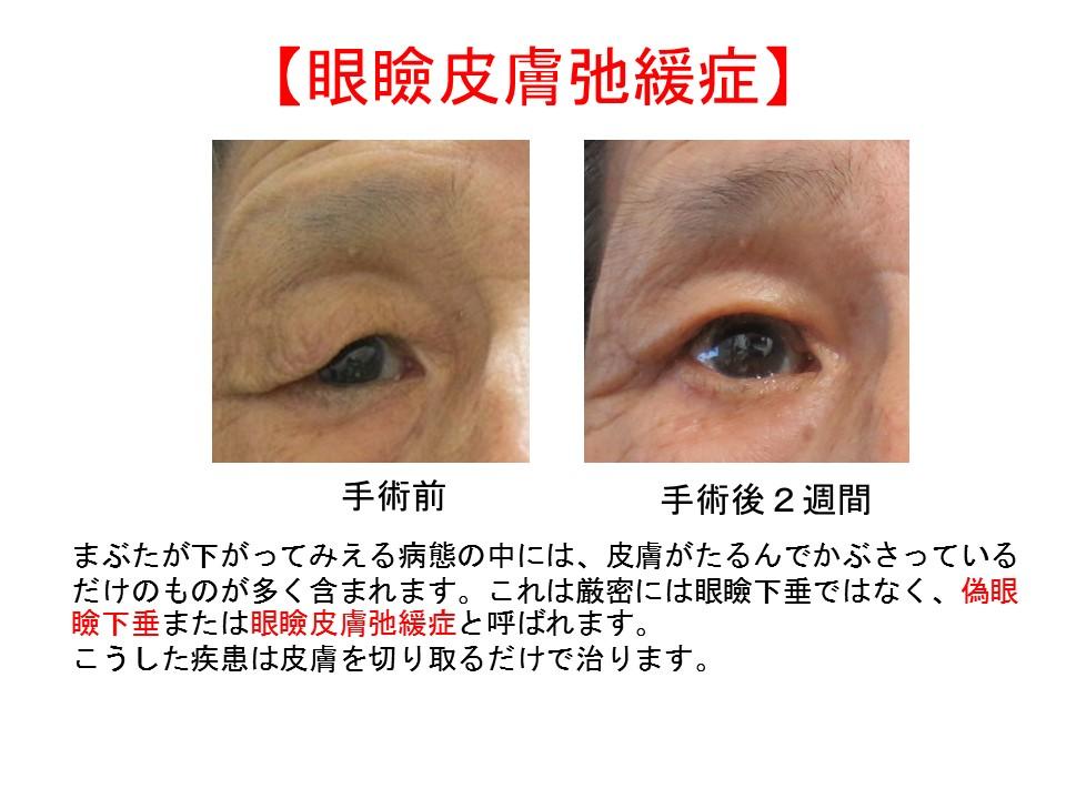【眼瞼皮膚弛緩症】まぶたが下がってみえる病態の中には、皮膚がたるんでかぶさっているだけのものが多く含まれます。これは厳密には眼瞼下垂ではなく、偽眼瞼下垂または眼瞼皮膚弛緩症と呼ばれます。 こうした疾患は皮膚を切り取るだけで治ります。