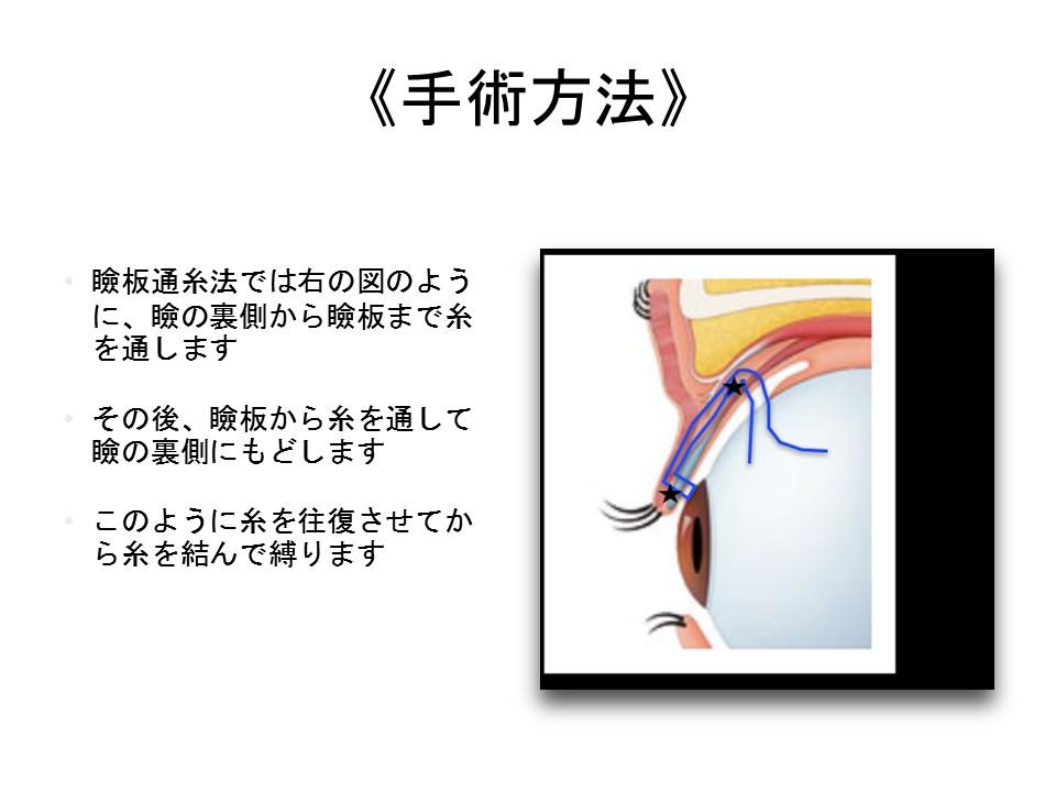 《手術方法》 瞼板通糸法では右の図のように、瞼の裏側から瞼板まで糸を通します その後、瞼板から糸を通して瞼の裏側にもどします このように糸を往復させてから糸を結んで縛ります