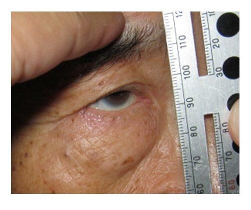 挙筋機能検査で術式を決定 眼瞼下垂がある方は、眉を持ち上げることで、下垂の状態を 無意識に補正しようとします。眉挙上の影響を除いた挙上機能 を正しく計測する必要があります。