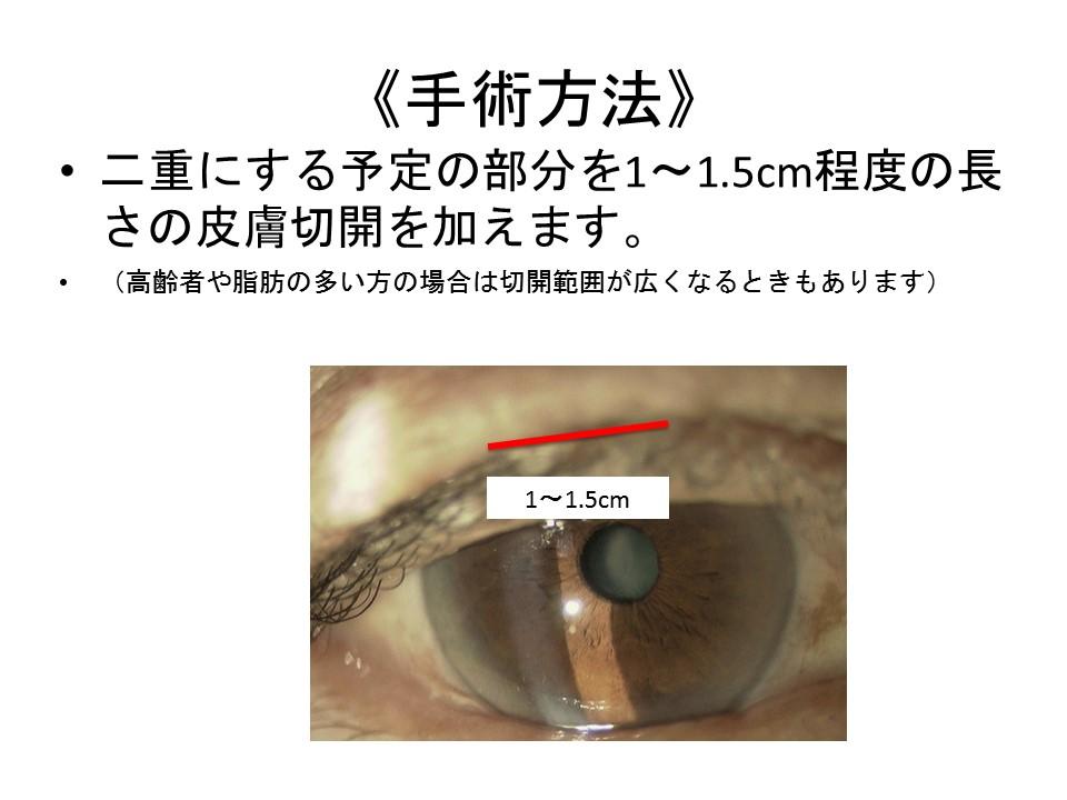 《手術方法》二重にする予定の部分を1〜1.5cm程度の長さの皮膚切開を加えます。 (高齢者や脂肪の多い方の場合は切開範囲が広くなるときもあります)