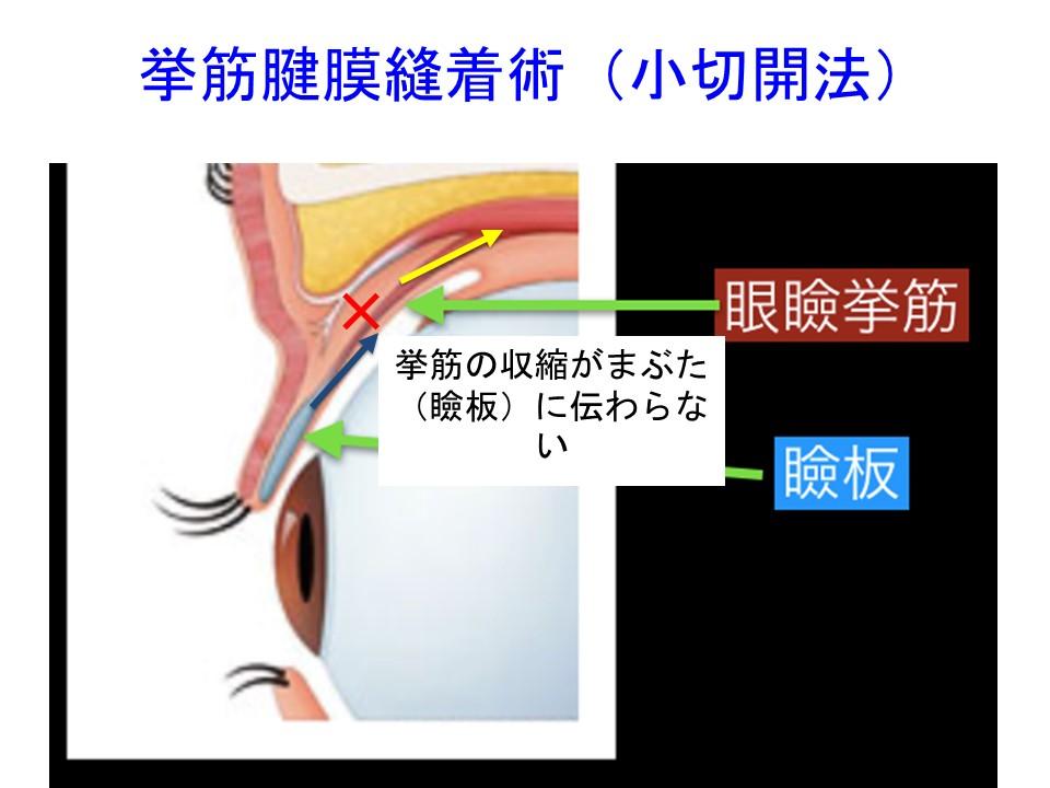 挙筋腱膜縫着術(小切開法)