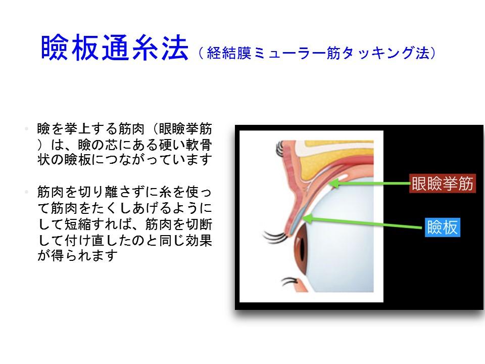 瞼板通糸法( 経結膜ミューラー筋タッキング法) 瞼を挙上する筋肉(眼瞼挙筋)は、瞼の芯にある硬い軟骨状の瞼板につながっています 筋肉を切り離さずに糸を使って筋肉をたくしあげるようにして短縮すれば、筋肉を切断して付け直したのと同じ効果が得られます