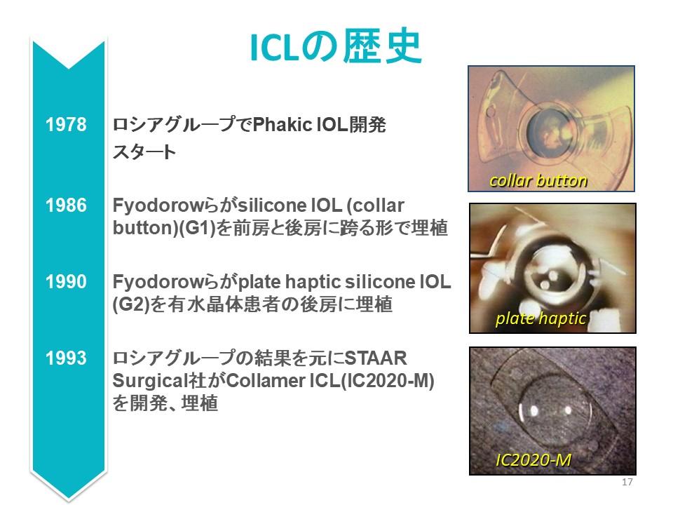 1978 ロシアグループでPhakic IOL開発 スタート 1986 Fyodorowらがsilicone IOL (collar button)(G1)を前房と後房に跨る形で埋植 1990 Fyodorowらがplate haptic silicone IOL (G2)を有水晶体患者の後房に埋植 1993 ロシアグループの結果を元にSTAAR Surgical社がCollamer ICL(IC2020-M) を開発、埋植